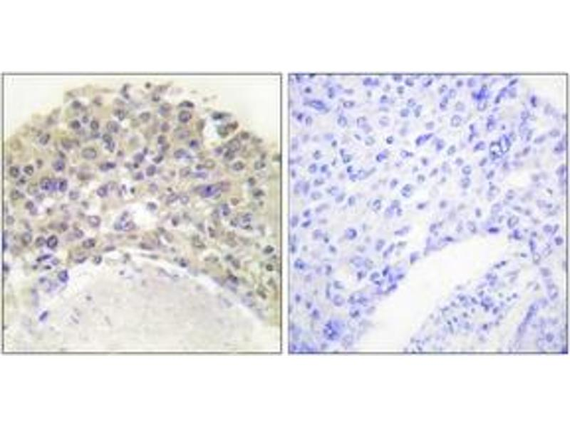 Immunohistochemistry (IHC) image for anti-SHC1 antibody (SHC (Src Homology 2 Domain Containing) Transforming Protein 1) (pTyr349) (ABIN1531193)