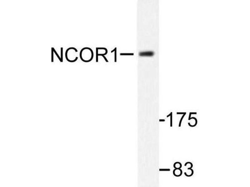Western Blotting (WB) image for anti-Nuclear Receptor Co-Repressor 1 (NCOR1) antibody (ABIN407956)