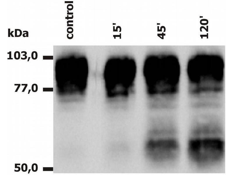 Western Blotting (WB) image for anti-Integrin beta 2 antibody (ITGB2) (ABIN94010)