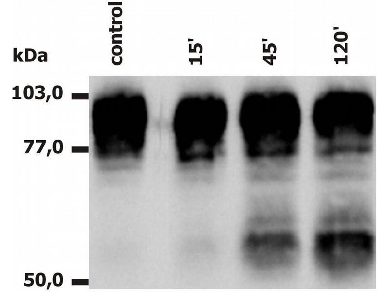 Image no. 1 for anti-Integrin beta 2 (ITGB2) antibody (ABIN94010)