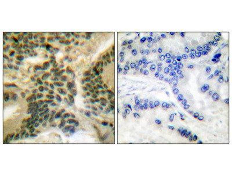 Immunohistochemistry (IHC) image for anti-Protein Kinase C, zeta (PRKCZ) (pThr410) antibody (ABIN1847212)