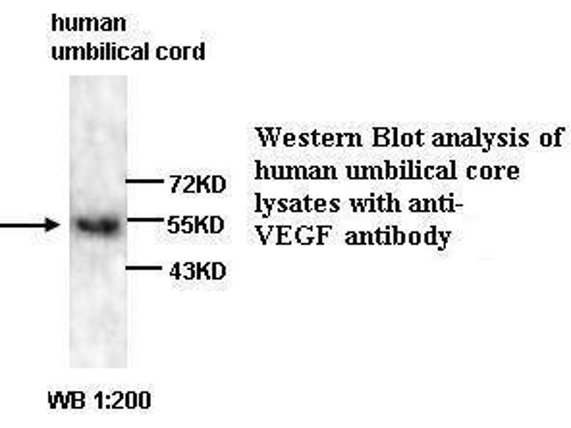 Western Blotting (WB) image for anti-VEGF antibody (Vascular Endothelial Growth Factor A) (ABIN802829)
