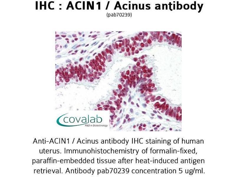 Image no. 3 for anti-Apoptotic Chromatin Condensation Inducer 1 (ACIN1) antibody (ABIN1731451)