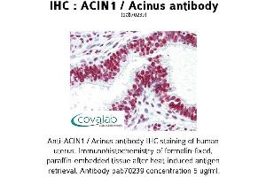 Image no. 3 for anti-Apoptotic Chromatin Condensation Inducer 1 (ACIN1) antibody (ABIN1731451)