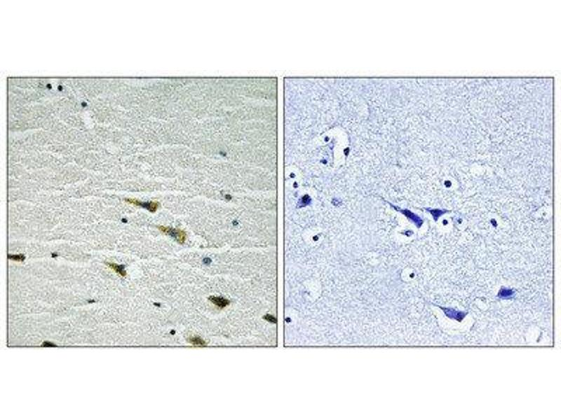 Immunohistochemistry (IHC) image for anti-TRKA antibody (Neurotrophic Tyrosine Kinase, Receptor, Type 1) (C-Term) (ABIN1847658)