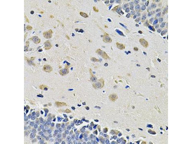Image no. 1 for anti-Integrin alpha 2 (ITGA2) antibody (ABIN2563445)