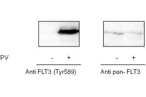 Image no. 1 for Fms-Related tyrosine Kinase 3 (FLT3) ELISA Kit (ABIN6730593)
