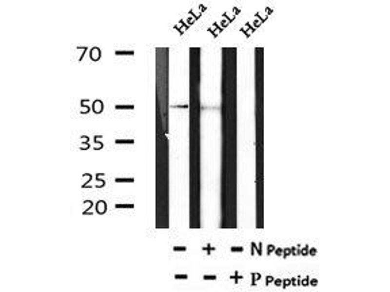 Image no. 2 for anti-Embryonic Ectoderm Development (EED) (pThr55) antibody (ABIN6269533)
