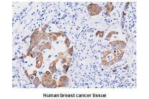 Immunohistochemistry (IHC) image for anti-Fas (TNFRSF6)-Associated Via Death Domain (FADD) (AA 1-208) antibody (ABIN934037)