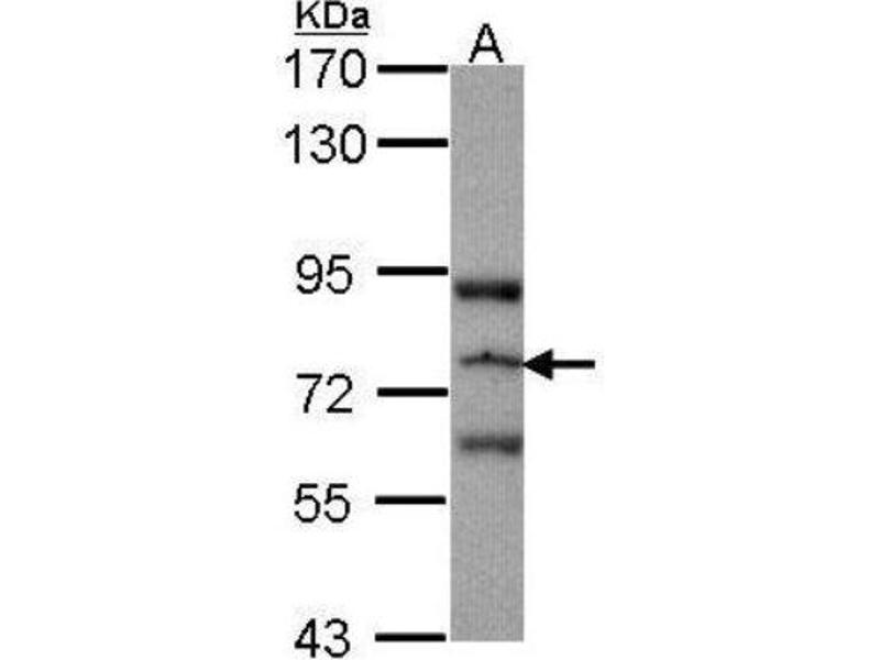 RASGRP3 antibody (RAS Guanyl Releasing Protein 3 (Calcium and DAG-Regulated)) (N-Term)