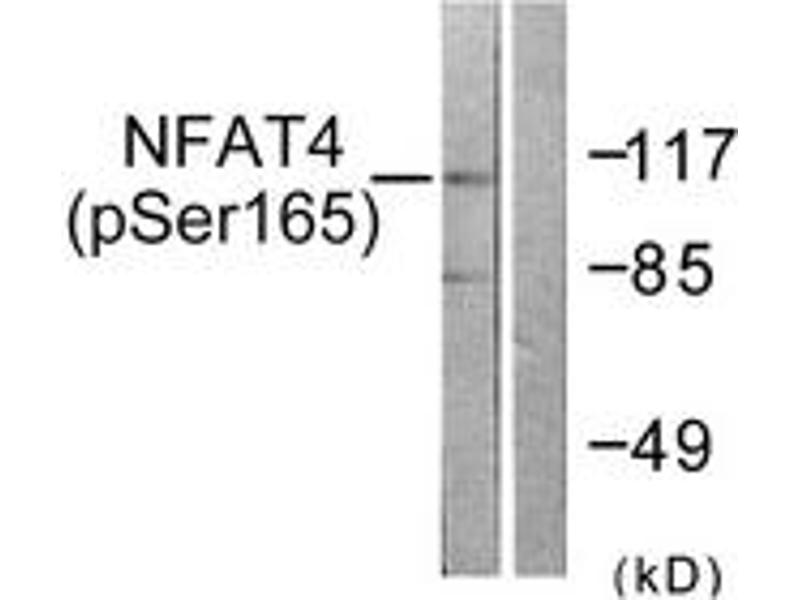 Western Blotting (WB) image for anti-NFATC3 antibody (Nuclear Factor of Activated T-Cells, Cytoplasmic, Calcineurin-Dependent 3) (pSer165) (ABIN1531351)