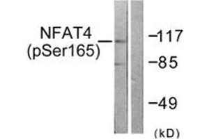 Western Blotting (WB) image for anti-Nuclear Factor of Activated T-Cells, Cytoplasmic, Calcineurin-Dependent 3 (NFATC3) (AA 131-180), (pSer165) antibody (ABIN1531351)