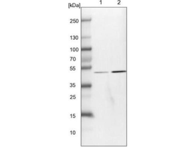 Western Blotting (WB) image for anti-Mitogen-Activated Protein Kinase Associated Protein 1 (MAPKAP1) antibody (ABIN4353814)