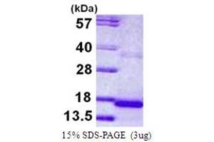 Image no. 1 for Cystatin 9 (Testatin) (CST9) (AA 29-159) protein (His tag) (ABIN667589)