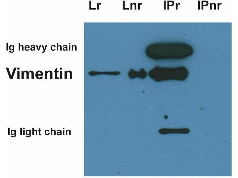 Image no. 1 for anti-Vimentin (VIM) antibody (ABIN94492)