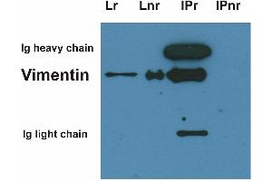 Immunoprecipitation (IP) image for anti-Vimentin antibody (VIM) (ABIN94492)