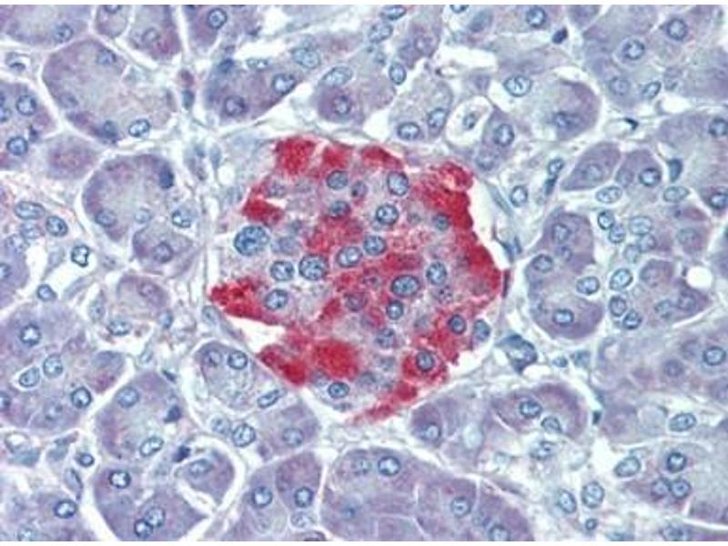 Immunohistochemistry (Paraffin-embedded Sections) (IHC (p)) image for anti-RPS6KA3 antibody (Ribosomal Protein S6 Kinase, 90kDa, Polypeptide 3) (AA 604-617) (ABIN615266)