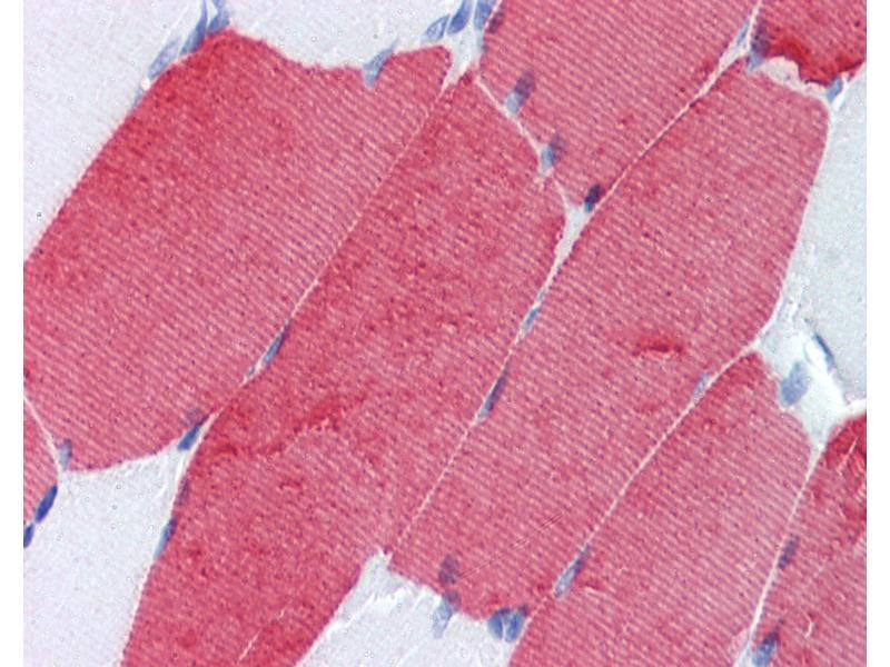 Image no. 2 for anti-Troponin T3, Skeletal, Fast antibody (ABIN462336)