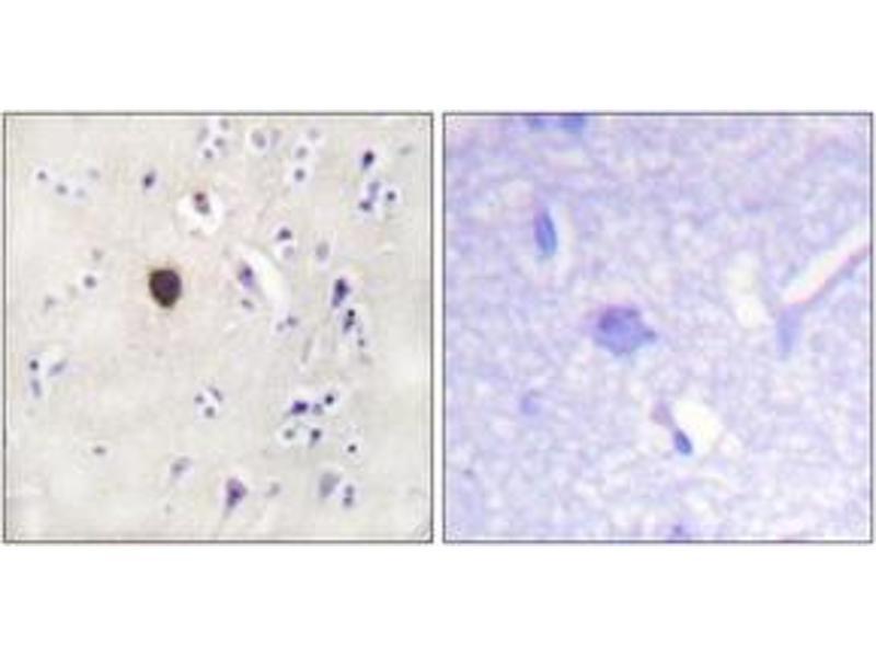 Immunohistochemistry (IHC) image for anti-Potassium Inwardly-Rectifying Channel, Subfamily J, Member 11 (KCNJ11) (AA 190-239) antibody (ABIN1532705)