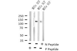 Image no. 1 for anti-Mast/stem Cell Growth Factor Receptor (KIT) (pTyr723) antibody (ABIN6268010)