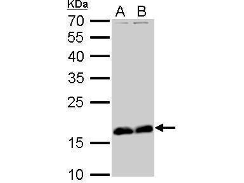 Western Blotting (WB) image for anti-Stathmin 1 antibody (STMN1) (C-Term) (ABIN2855912)