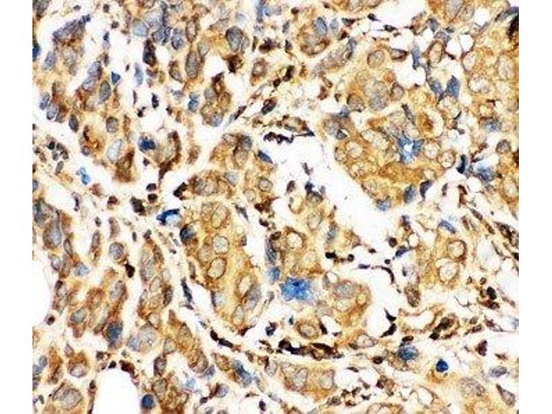 Immunohistochemistry (IHC) image for anti-BH3 Interacting Domain Death Agonist (BID) (AA 1-195) antibody (ABIN3030163)