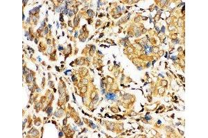 Immunohistochemistry (IHC) image for anti-BID antibody (BH3 Interacting Domain Death Agonist) (AA 1-195) (ABIN3030163)