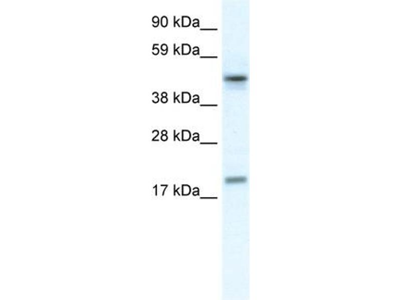 Western Blotting (WB) image for anti-Programmed Cell Death 4 (Neoplastic Transformation Inhibitor) (PDCD4) (N-Term) antibody (ABIN971363)