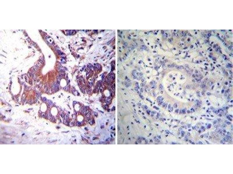 Immunohistochemistry (Paraffin-embedded Sections) (IHC (p)) image for anti-Nuclear Receptor Subfamily 3, Group C, Member 2 (NR3C2) antibody (ABIN152721)