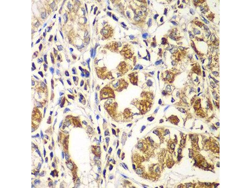 Immunohistochemistry (IHC) image for anti-RAC1 antibody (ABIN2737443)