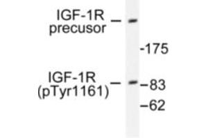 image for anti-IGF1R antibody (Insulin-Like Growth Factor 1 Receptor) (pTyr1161) (ABIN318045)