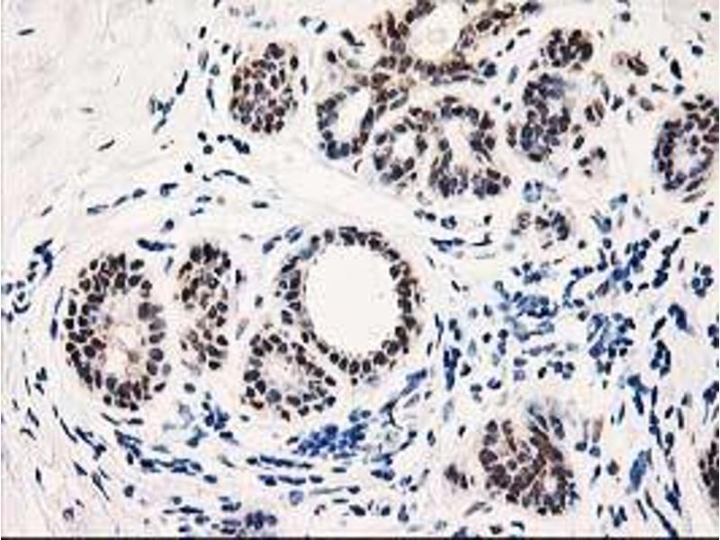 Immunohistochemistry (IHC) image for anti-TP53I3 antibody (Tumor Protein P53 Inducible Protein 3) (ABIN2455105)