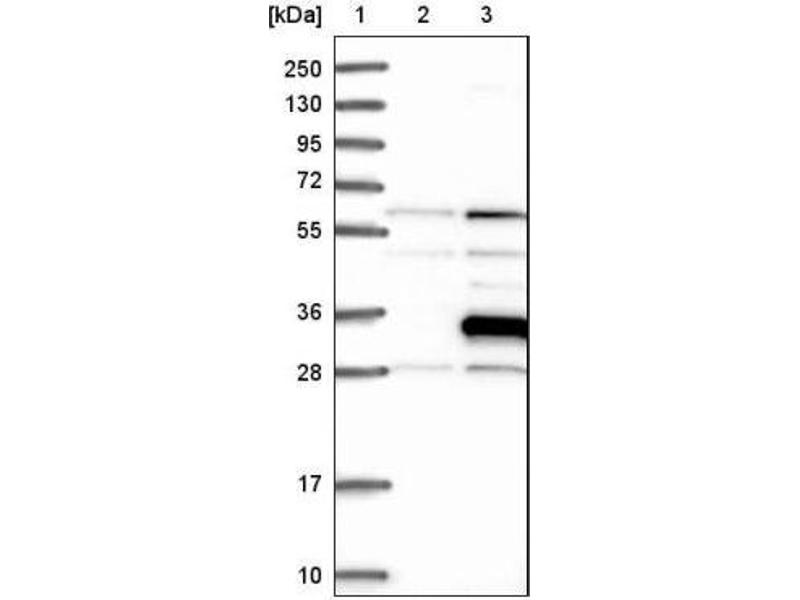 Western Blotting (WB) image for anti-Ras Association (RalGDS/AF-6) Domain Family Member 3 (RASSF3) antibody (ABIN4349451)