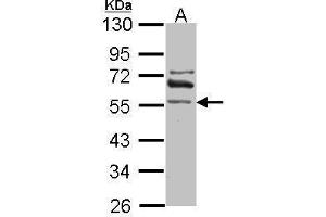 Image no. 1 for anti-Aldehyde Dehydrogenase 1 Family, Member A2 (ALDH1A2) (Center) antibody (ABIN2856988)