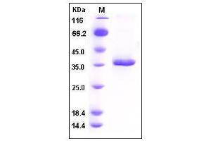 Image no. 1 for Secreted Frizzled-Related Protein 2 (SFRP2) (AA 1-295) protein (His tag) (ABIN2007179)
