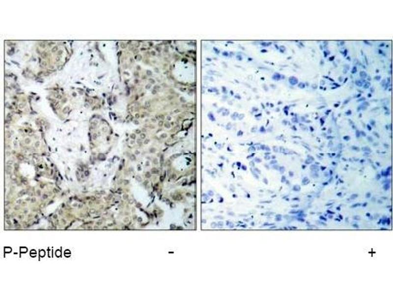 image for anti-MAP2K3 antibody (Mitogen-Activated Protein Kinase Kinase 3) (pSer189) (ABIN196862)