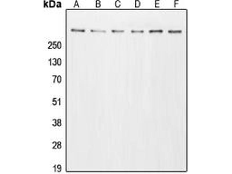 Western Blotting (WB) image for anti-E1A Binding Protein P300 (EP300) (N-Term) antibody (ABIN2707672)