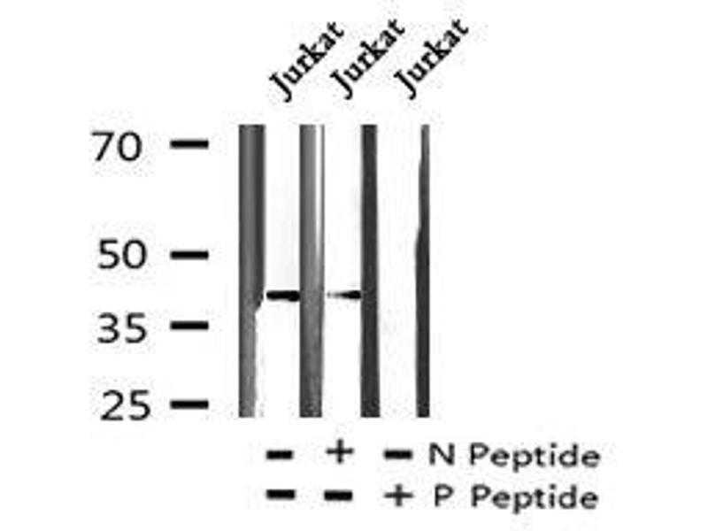 Image no. 1 for anti-Eukaryotic Translation Initiation Factor 2B, Subunit 4 Delta, 67kDa (EIF2B4) (pTyr298) antibody (ABIN6269923)