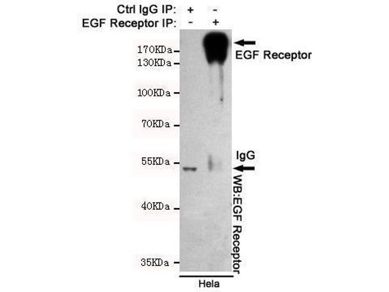 Immunoprecipitation (IP) image for anti-EGFR antibody (Epidermal Growth Factor Receptor) (ABIN2169502)