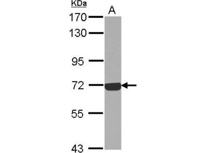 Western Blotting (WB) image for anti-C9 antibody (Complement Component C9) (Center) (ABIN4299958)