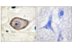Image no. 1 for anti-Coagulation Factor III (thromboplastin, Tissue Factor) (F3) (AA 246-295), (pSer290) antibody (ABIN1531560)