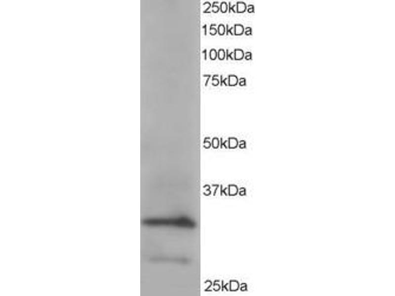 Western Blotting (WB) image for anti-ARPC2 antibody (Actin Related Protein 2/3 Complex, Subunit 2, 34kDa) (ABIN2155314)