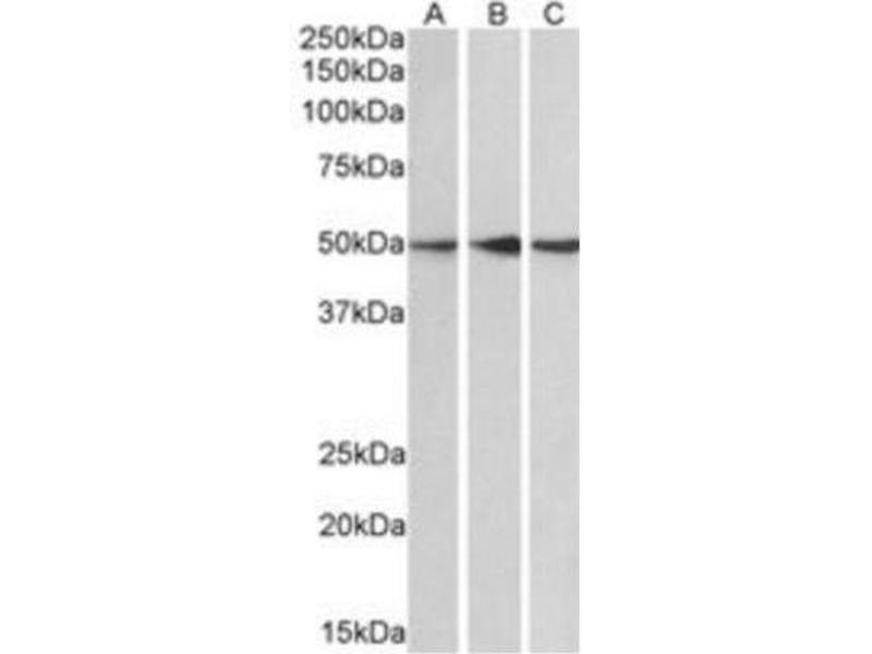 Western Blotting (WB) image for anti-Protein Phosphatase 2, Regulatory Subunit B', epsilon Isoform (PPP2R5E) (C-Term) antibody (ABIN257669)