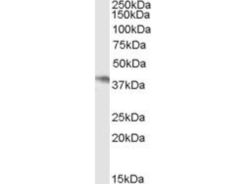 Western Blotting (WB) image for anti-Neutrophil Cytosolic Factor 4, 40kDa (NCF4) antibody (ABIN253305)