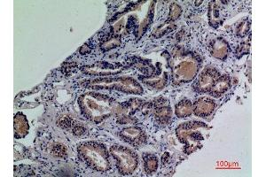 Image no. 4 for anti-Ectonucleotide pyrophosphatase/phosphodiesterase 3 (ENPP3) (Internal Region) antibody (ABIN3187797)