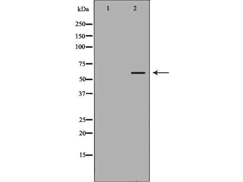 Western Blotting (WB) image for anti-Receptor-Interacting Serine-threonine Kinase 2 (RIPK2) antibody (ABIN6264766)