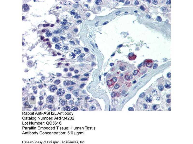 Immunohistochemistry (IHC) image for anti-ASH2L Antikörper (Ash2 (Absent, Small, Or Homeotic)-Like (Drosophila)) (Middle Region) (ABIN2778325)