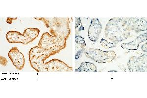 Image no. 3 for anti-Lysosomal-Associated Membrane Protein 1 (LAMP1) (AA 1-382), (Extracellular Domain) antibody (ABIN1998475)