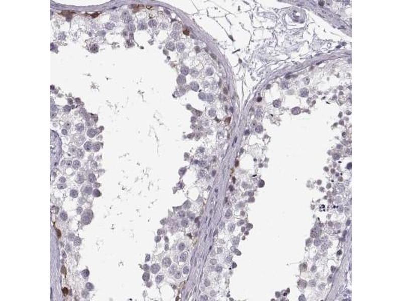 Immunohistochemistry (Paraffin-embedded Sections) (IHC (p)) image for anti-Nanos Homolog 3 (NANOS3) antibody (ABIN4337826)