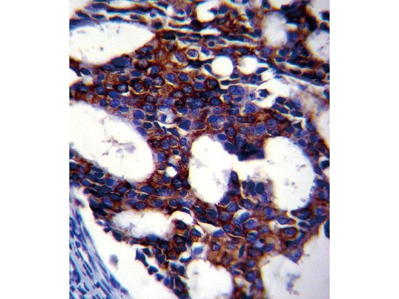 Immunohistochemistry (IHC) image for anti-TGFB2 antibody (Transforming Growth Factor, beta 2) (ABIN659106)
